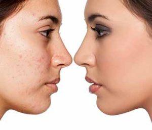 blemish free skin